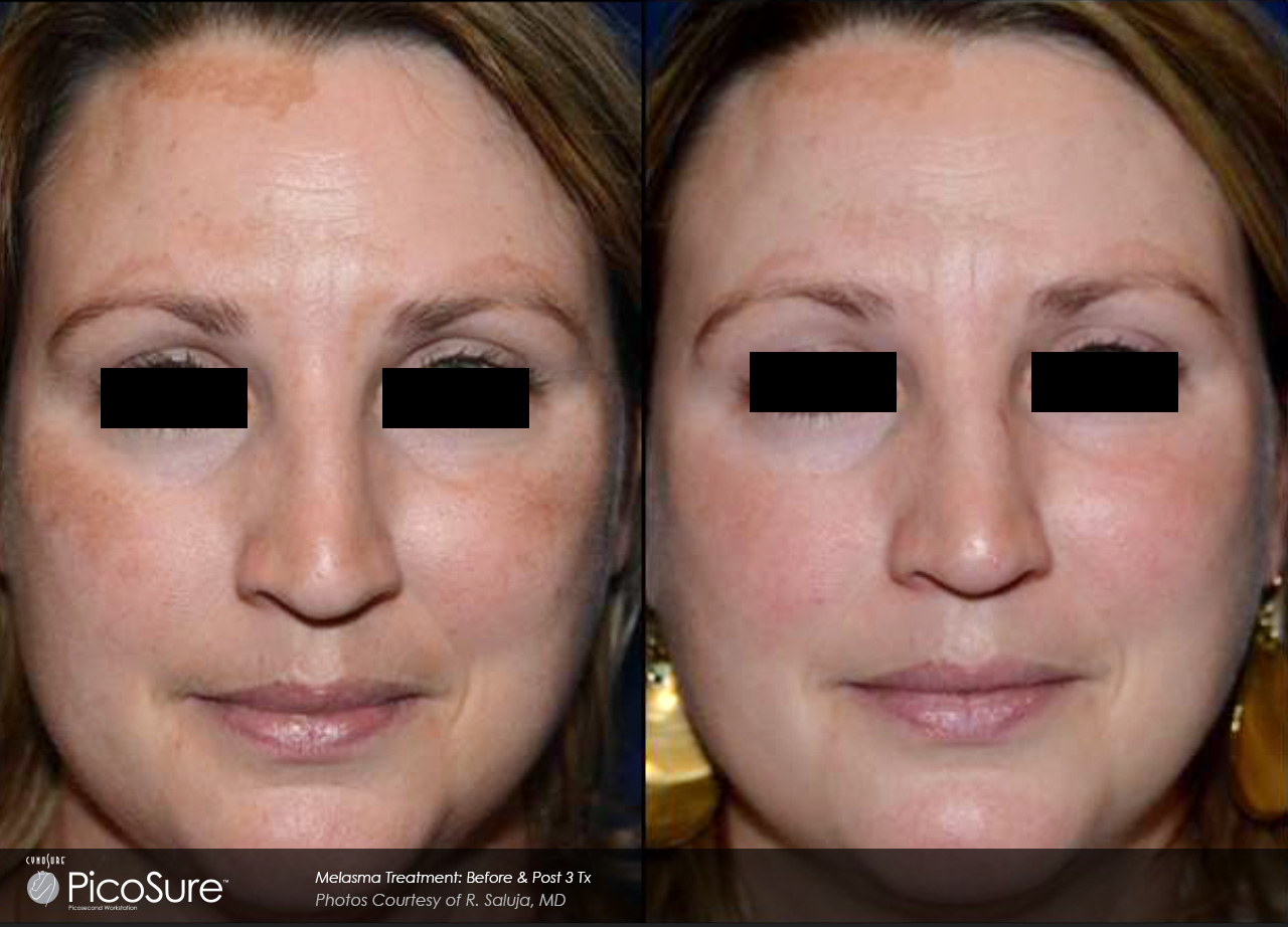 marketing_materials_BA-PicoSure-Saluja-Melasma-Post3Tx-Fullscreen1