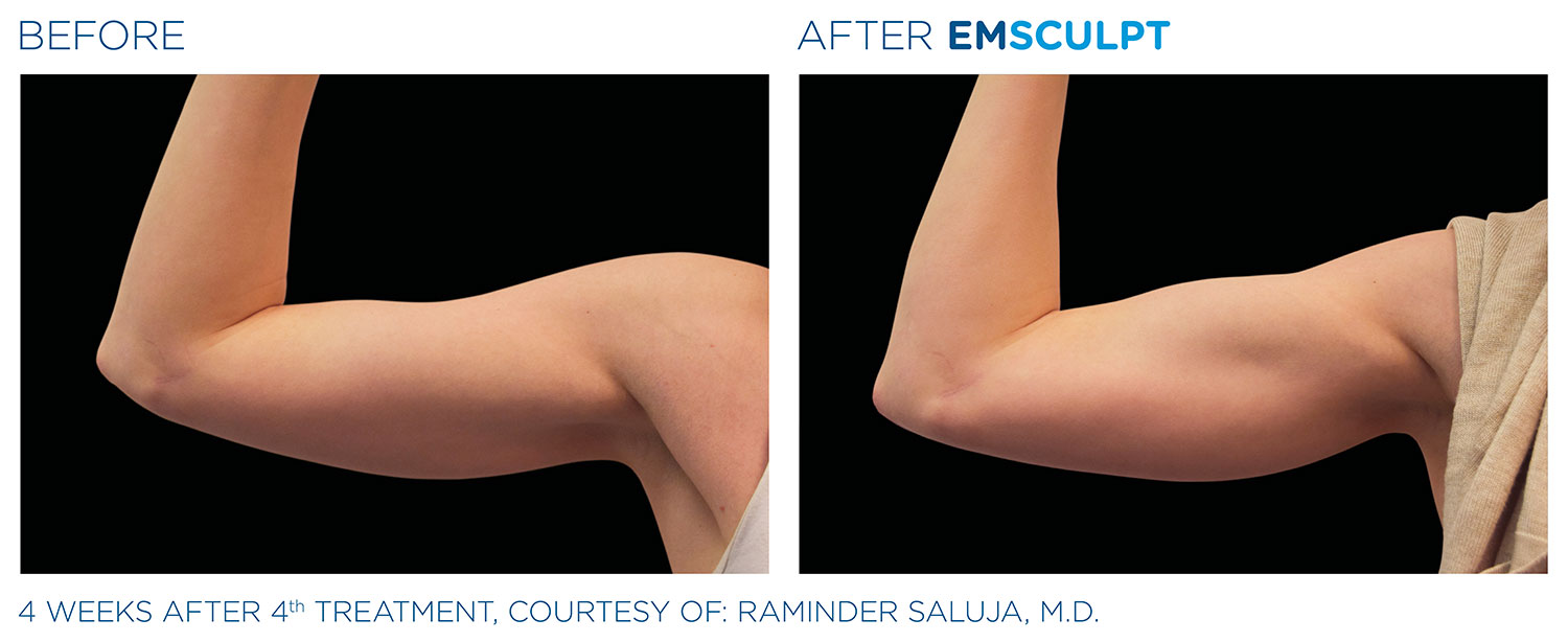 Before and After EMSCULPT
